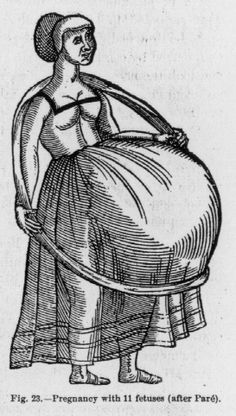 "From wikipedia: """"Pregnancy with 11 fetuses (after Pare)."" Giovanni Pico della Mirandola reported the case of an Italian woman, Dorothea, who allegedly gave birth to undecaplets after having given birth to nonuplets. This illustration is a copy of an original by Ambroise Pare from the 1900 edition of Anomalies and Curiosities of Medicine"""