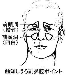 「眼科・耳鼻咽喉科症状」のブログ記事一覧-現代医学的鍼灸治療