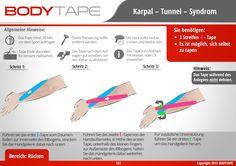 Auswirkung von Frakturen am Handgelenk auf die Funktionsfähigkeit der Hand