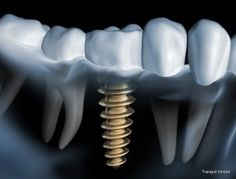 Dental implants are metal anchors that act as tooth root substitutes. They are surgically placed into the jawbone. #dental_implants http://tranquildentalaurora.com/general-and-cosmetics/dental-implants/