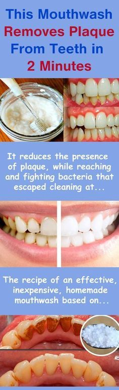 You might not be aware of the fact that oral health actually determines your overall health. One of the vital parts of the procedure for oral hygiene consists of using mouthwash. It reduces the presence of plaque, while reaching and fighting bacteria that escaped dental cleaning at the same time. It is actually the final…