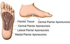 33 Best Plantar Fibroma Images On Pinterest Foot Pain Leg Pain