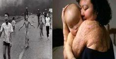 Σκέψεις: PostHeaderIcon Το «κορίτσι της ναπάλμ» γίνεται 51 ...