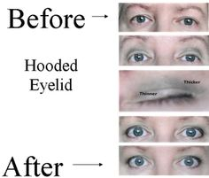 Found this fabulous tutorial on how to correct a hooded eyelid.