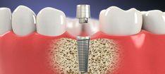 dental implants in Baltimore