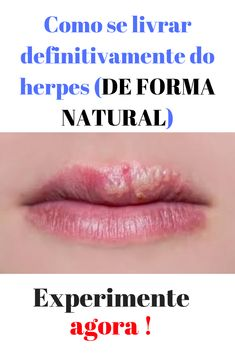 herpes labial diabetes