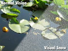 A comparison between normal vision and what sufferers of visual snow see. Visual Snow, Depersonalization, First Time, The Cure, Plant Leaves, Plants, Doctors, Eyes, Plant