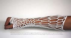 ¡Increible! Exoesqueleto para fracturas hecho con impresora3D http://jjcoll3dhealth.wordpress.com/2013/07/02/exoesqueleto-para-fracturas-hecho-con-impresora-3d/