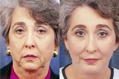 Here Are 7 Best Anti-Aging Facial Exercises For A Complete Makeover - Page 2 sur 4 Long Thick Eyelashes, How To Grow Eyelashes, Thicker Eyelashes, Vicks Vaporub, Apple Cider Vinegar For Skin, Greasy Skin, Goth Subculture, Full Brows, Slim Thighs