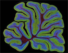 A mouse brain.