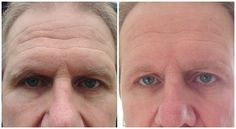 The 24 hour Nerium Experience...Fabulous results in the appearance of the deep forehead wrinkles, overall discoloration, redness and reduction of pore size!  Try it today, with a 30 day money back guarantee.  www.stover.neriumproducts.com
