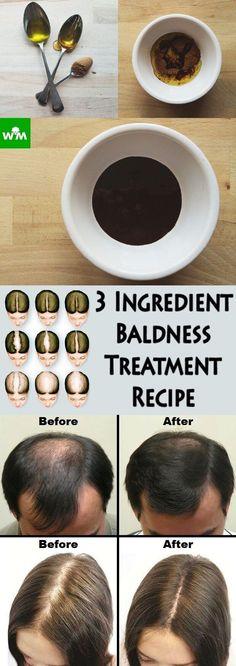 3-ingredient-baldness-treatment-recipe