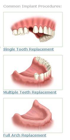 Teeth whitening supplies porcelain veneers,concept of oral health dental implant cost,dental tartar removal gum disease pain. Dental Implant Procedure, Dental Implants, Tartar Removal, Tooth Replacement, Root Canal, Oral Health, Teeth Whitening, Facts, Tooth Bleaching