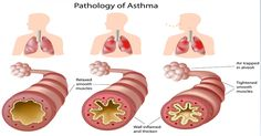 5 Tried and True Remedies for Children's Asthma