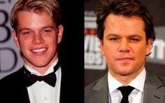 Las 10 celebridades que fueron tildados de feos y ahora son la envidia de todos en la industria