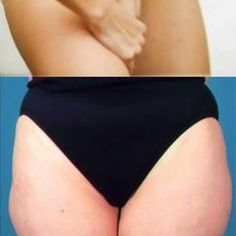 Lose Inner Thigh Fat Instantly