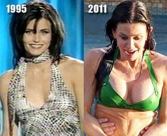 Before and After Photos by Kylie Jenner - best photos Christina Aguilera Breast Implants Before and After Robert Kardashian, Khloe Kardashian, Bad Plastic Surgeries, Plastic Surgery Photos, Kardashian Kollection, Christina Aguilera, Courtney Cox Plastic Surgery, Kylie Jenner, Kendall