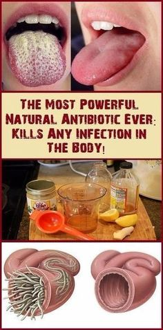 This Is The Most Powerful Natural Antibiotic Ever – Kills Any Infections In The Body!