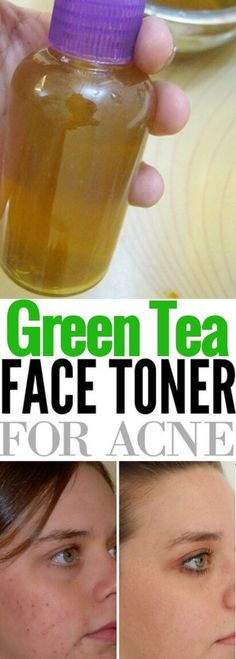 DIY Green Tea Toner for acne. This DIY toner for face acne is the perfect toner to clear and get rid of acne. Get Rid of acne fast with diy Green Tea toner
