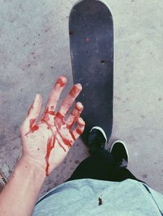 """(Open RP, be the other guy) I look down at my bloody hands and sigh. So maybe getting in a fight wasn't the best idea, but it was the only option. I know when I get home, you'll be made at me, so I brace myself as I skateboard home and walk the board inside. """"Hey...."""" I say, biting my lip. """"Daemon? What happened!"""" You shout, rushing over to me, looking at my bloody nose, and blood covered lips and shirt. """"What did you do this time?!"""" You shout. """"I....I got in a fight..."""" I respond, shyly."""