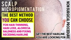 Why Micro-Pigmentation Is Best Option For Weak Donor Area? The Effective Pictures We Offer You About Hair Transplant fail A quality picture can tel Hair Transplant Results, Hair Transplant Cost, Scalp Micropigmentation, Lip Fillers, About Hair, Fall Hair, Pune, Hair Loss
