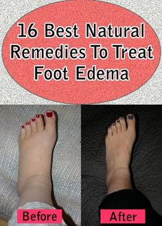 Best Natural Remedies To Treat Foot Edema Foot edema, also known as a foot swelling, is the result of the excessive accumulation of fluids in . ==Foot edema, also known as a foot swelling, is the result of the excessive accumulation of fluids in . Cramp Remedies, Remedies For Menstrual Cramps, Foot Remedies, Health Remedies, Natural Remedies, Bloating Remedies, Arthritis Remedies, Diabetes Remedies, Natural Treatments