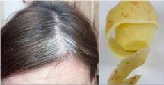 Ci sono molte tinte per capelli sul mercato che affermano di poter coprire i capelli bianchi. Funzionano bene, ma anche danneggiano i capelli a causa della grande quantità di sostanze chimiche che contengono. E 'meglio usare i rimedi naturali per sbarazzarsi di capelli bianchi, e noi abbiamo uno per voi. Ci sono molti rimedi fatti in …