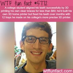 College student 3D prints his own braces - WTF fun facts