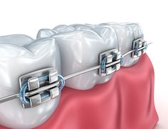 Dental Implants - Сток картинки - iStock