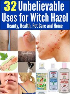 32 Unbelievable Uses for Witch Hazel: Beauty, Health, Pet Care and Home. # Beauty health 32 Unbelievable Uses for Witch Hazel: Beauty, Health, Pet Care and Home Natural Cures, Natural Healing, Natural Skin, Natural Beauty, Natural Foods, Natural Products, Beauty Products, Health And Beauty Tips, Health Tips
