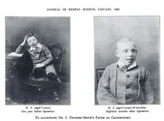 The mental health sciences have, and very much still are, a huge, scary, dangerous mess. Even more so, I think, in the 1800s with the lobotomies and other life-robbing procedures. I wonder who this little boy was. Why did they do this to him? Was her merely misbehaving, like all the women who were 'put away' just because they spoke out or had different ideas than the status quo? We'd like to think we've come very far, but truth is, not nearly as far as the public thinks. :( via…