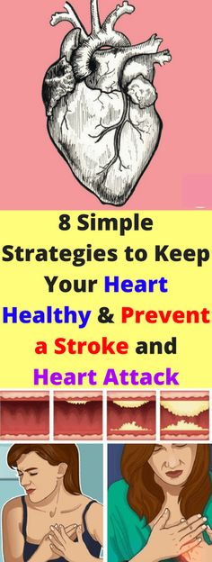 8 Simple Strategies To Keep Your Heart Healthy & Prevent A Stroke & Heart Attack! Here 8 Simple Strategies To Keep Your Heart Healthy & Prevent A Stroke & Heart Attack! Heart Healthy Recipes, Healthy Tips, Healthy Foods, Stay Healthy, Ischemic Heart Disease, Health Routine, Healthy Exercise, Health Problems, Ten