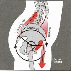 Rotación anterior de la pelvis
