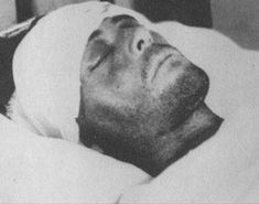 """Buck Barrow on his deathbed. of Justice files read: """"Due to the lack of medical attention, the wound in Barrow's head, gave off such an offensive odor, that it was with utmost difficulty that one could remain within several feet of him. Bonnie And Clyde Photos, Bonnie Clyde, Famous Outlaws, Crime, Bonnie Parker, Hissy Fit, Fort Smith, Bad Boys, Iowa"""