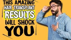 Best Hair Transplant Result Ever Seen In Pune ! Hair Transplant Results, Best Hair Transplant, Pune, Fall Hair, Clinic, Cool Hairstyles, Memes, Facial Hair Transplant, Best Hair Products