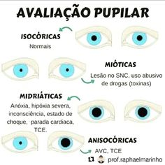 Avaliação pupilar Nursing Care, Nursing Jobs, Medicine Student, Nurse Love, Study Organization, School Study Tips, School Motivation, School Quotes, Med School