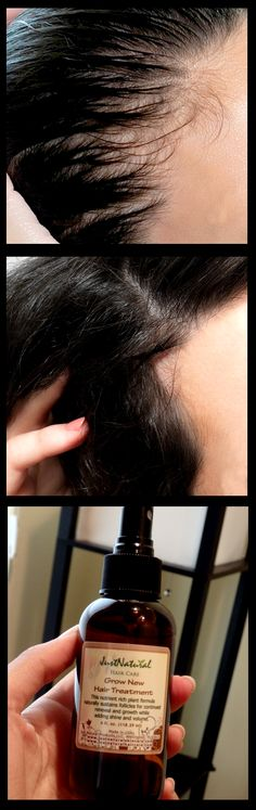Avoid the use of chemical based hair products that could affect hair follicles and eventually lead to hair loss. This natural grow new hair treatment feeds your hair follicles and scalp to encourage new growth. Natural Hair Care, Natural Hair Styles, Stop Hair Loss, Healthy Hair Growth, Hair Loss Treatment, Hair Repair, Tips Belleza, Hair Health, Grow Hair