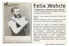 EDS, Ehlers-Danlos Syndrom, Zespół Ehlersa-Danlosa; stowarzyszenia chorych na EDS