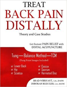 The Balance Method, which has been made popular by Dr. Tan, is clearly explained. Tung acupuncture point images, TCM points images, all the images you need to do these treatments. It is all in one book. This is a complete reference for treating anything from BL 23 down to the coccyx.