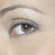 Best Treatments for Eye Wrinkles