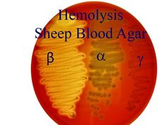 hemolysis microbiology test - Google Search