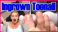TOENAIL REMOVED {Ingrown Toenail Surgery } - All pimples & Health