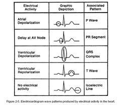 Heart Electrical Activity basics of a normal ECG Cardiac Nursing, Nursing Mnemonics, Rn School, Medical School, Heart Electrical, Nursing School Notes, Nursing Tips, Nursing Programs, Nursing Cheat Sheet