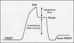 Volume control (VC) and pressure control (PC) are two