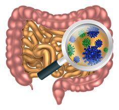 Megdöbbentő, hogy ismét a jó bélflórához és az egészséges mikrobiomhoz lyukadunk ki. Vizsgálatok megerősítették, hogy a már kialakult Covid-19 esetén a bélflóra állapota összefügg a megbetegedés súlyosságával. Human Digestive System, Candida Albicans, Low Stomach Acid, Abdominal Bloating, Troubles Digestifs, How To Prevent Cavities, Gut Microbiome, Wet Wipe, Immune System
