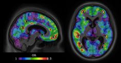 GENIO Italiano Giuseppe Cotellessa: Software Predicts Dementia from Amyloid PET Scans ...