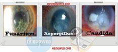 Fungal keratitis capsule