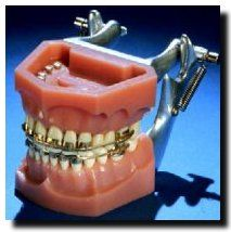 In the early 1900s orthodontists used real gold, platinum and silver for braces.  How's that for bling?!