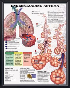 poster lists symptoms for adults and children and identifies common triggers. Pulmonology chart for doctors and nurses.Asthma anatomy poster lists symptoms for adults and children and identifies common triggers. Pulmonology chart for doctors and nurses. Asthma Remedies, Asthma Symptoms, Respiratory Therapy, Respiratory System, Endocrine System, Asthma Relief, Lunge, Medical Information, Allergies