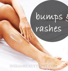 Bikini razor burn remedies can not